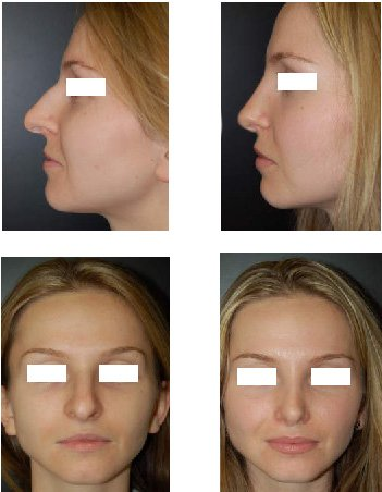 Before after rhinoplasty