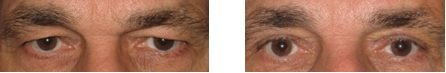 Cheap eyelid surgery