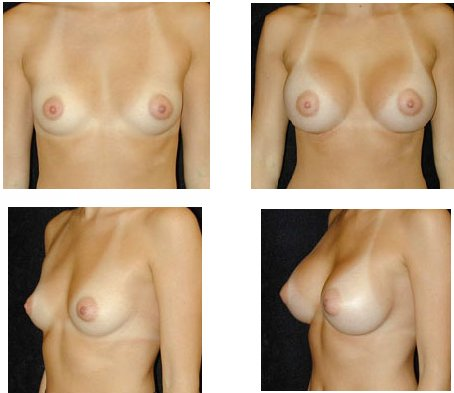 free breast implants