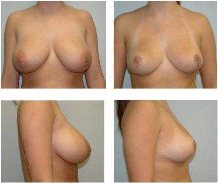 Plastic surgery abroad: Breast Reduction and Gynecomastia