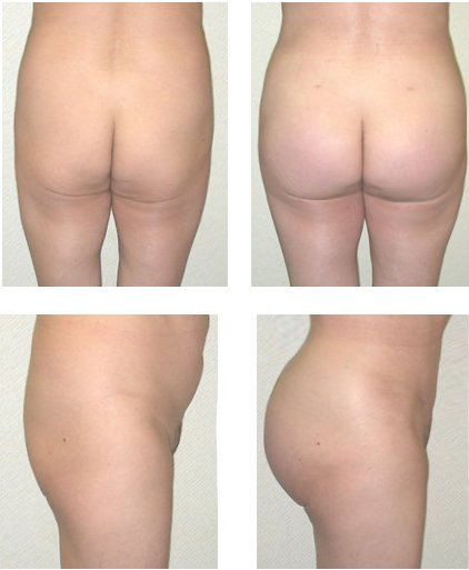 Before after buttock augmentation