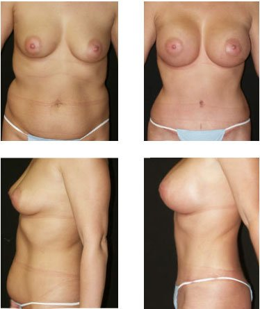 Before after tummy tuck